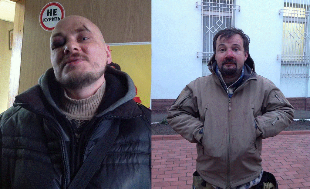 Two RFERL Ukrainian journalists were beaten while covering the protests. In this side by side, their bruises and injuries are apparent.