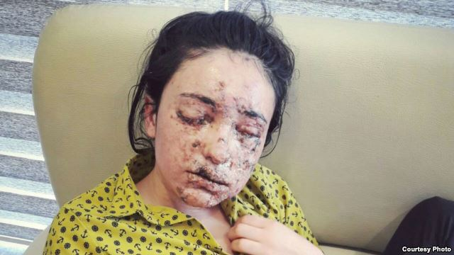 close up of young woman with shrapnel ijuries to her face.