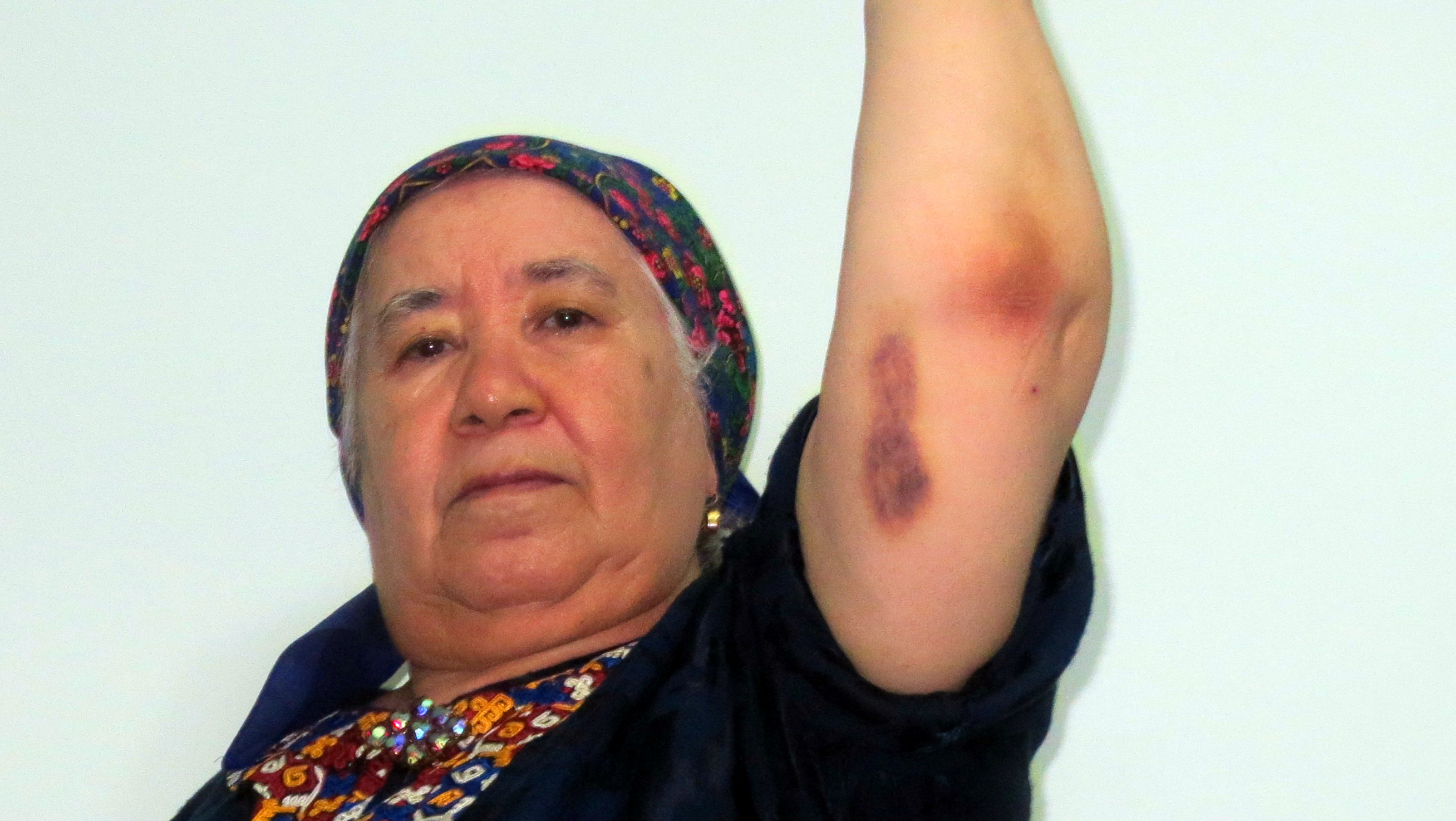 A woman raises her arm to show bruising